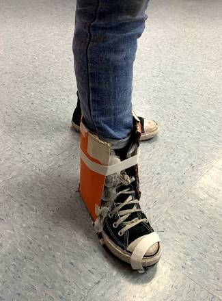 Foot Orthosis-Design and Modeling